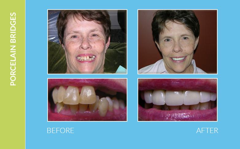 Dental Braces Agoura Hills CA