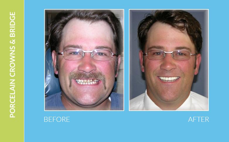 Dental Braces Camarillo CA