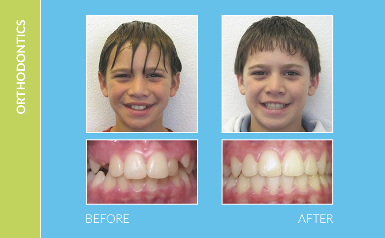 Dental Braces West Hills CA