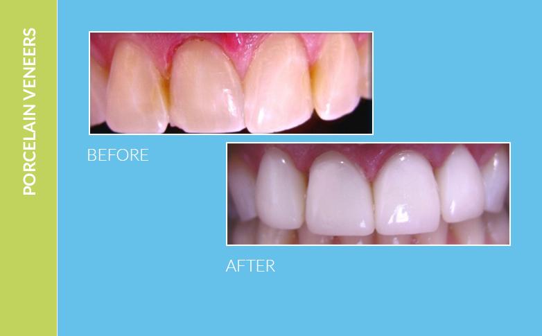 Dental Braces Thousand Oaks CA