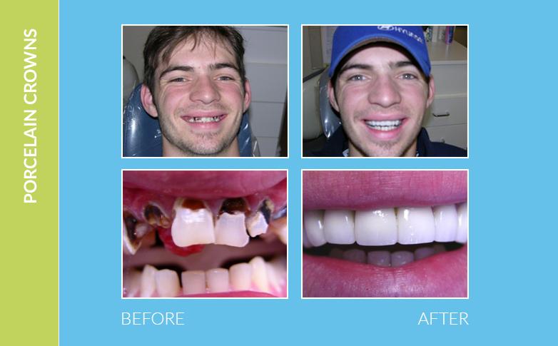Dental Braces Westlake Village CA