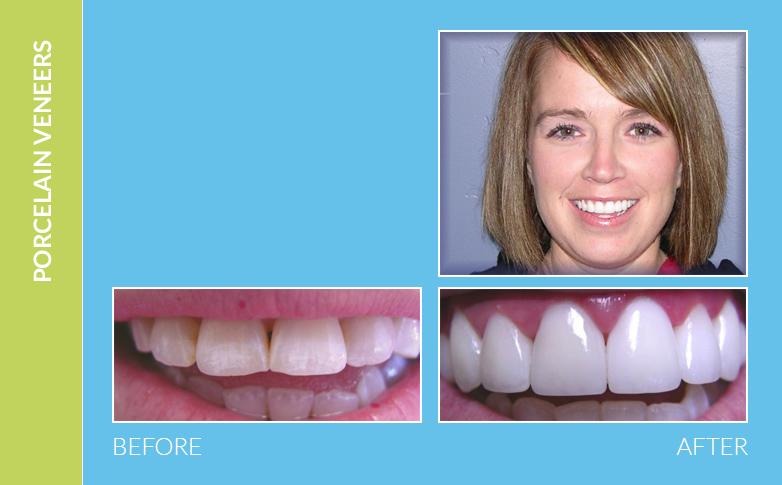 Dental Braces Oak Park CA