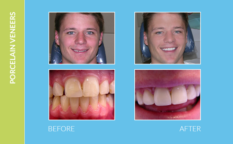 Dental Braces Calabasas CA