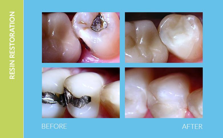 Dental Braces Tarzana CA