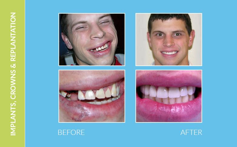 Dental Malibu CA