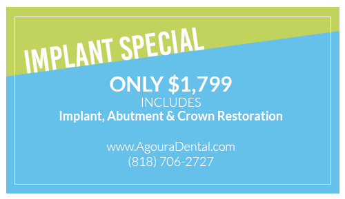 Dental Implants Agoura Hills CA